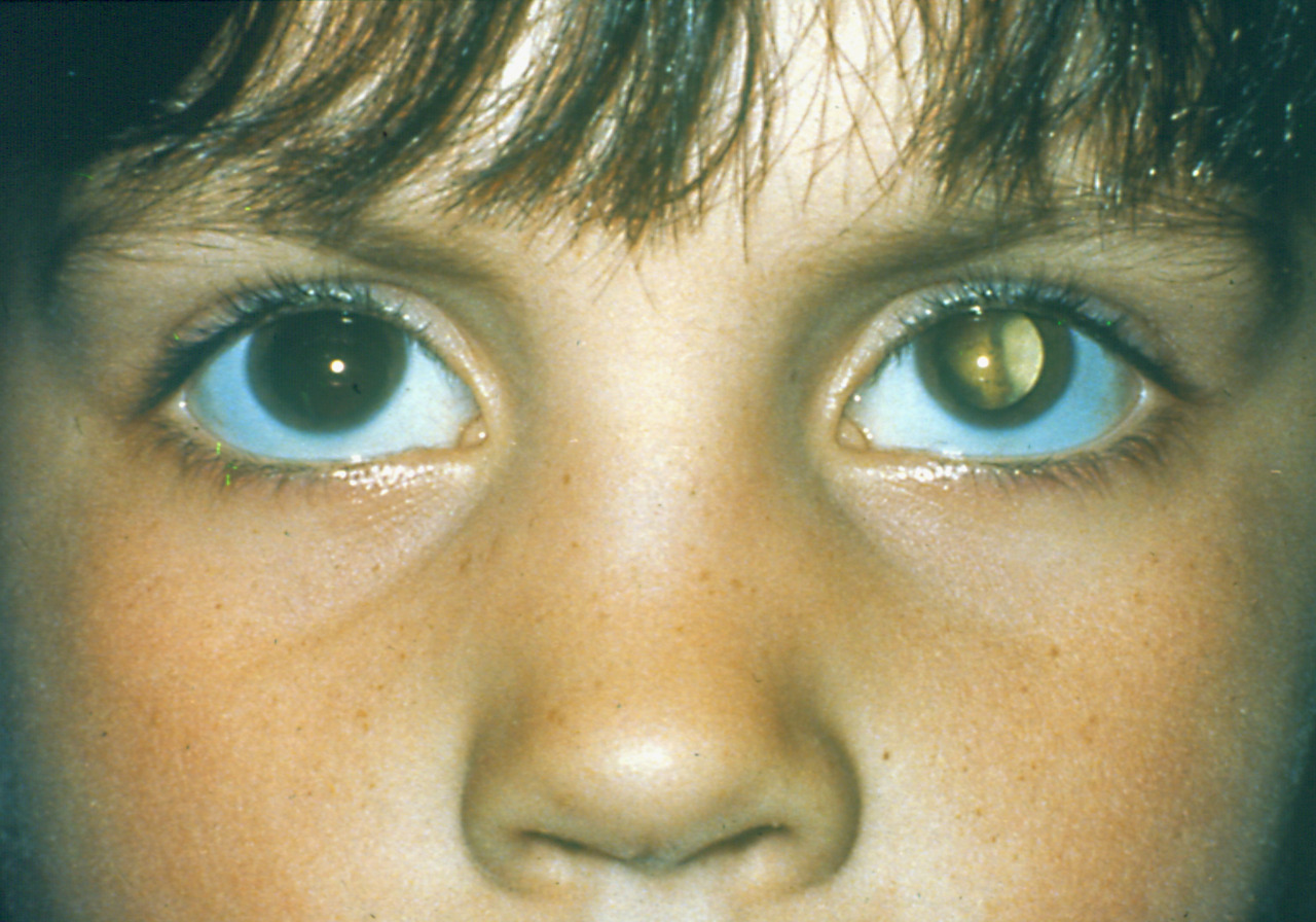 Human cat eyes syndrome