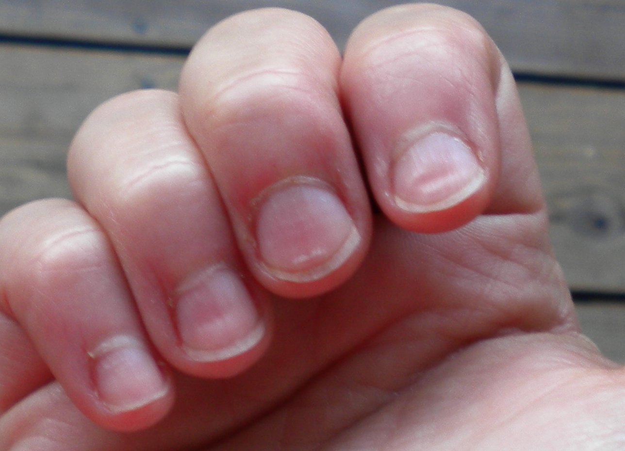 how to grow nails overnight
